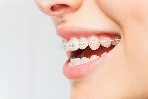 Should I Wait for a Dentist to Recommend Seeing an Orthodontist?
