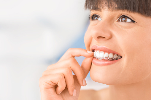 Girl putting her clear braces in place