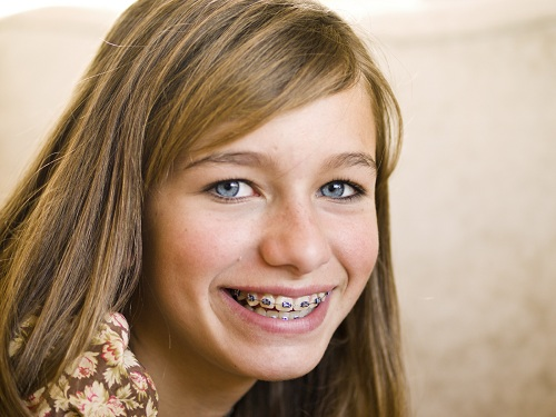 Smiling blonde girl with braces