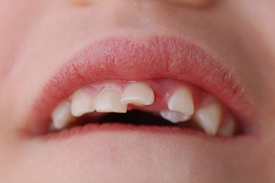 Child with Impacted Canine Tooth