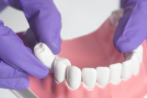 Fixing Dental Problems Through Tooth Extraction